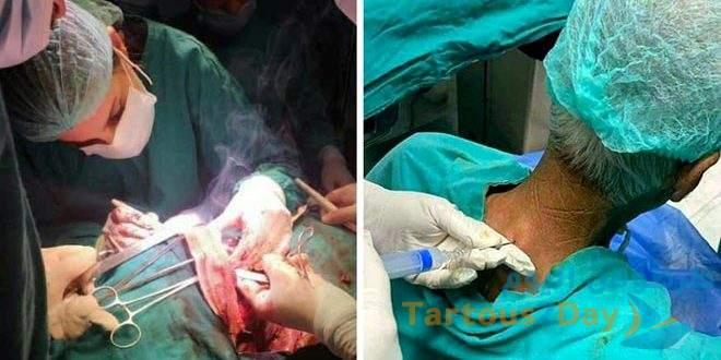 عملية تخدير قطني في دمشق الأولى في سورية و في المرتبة الـ11 عالمياً